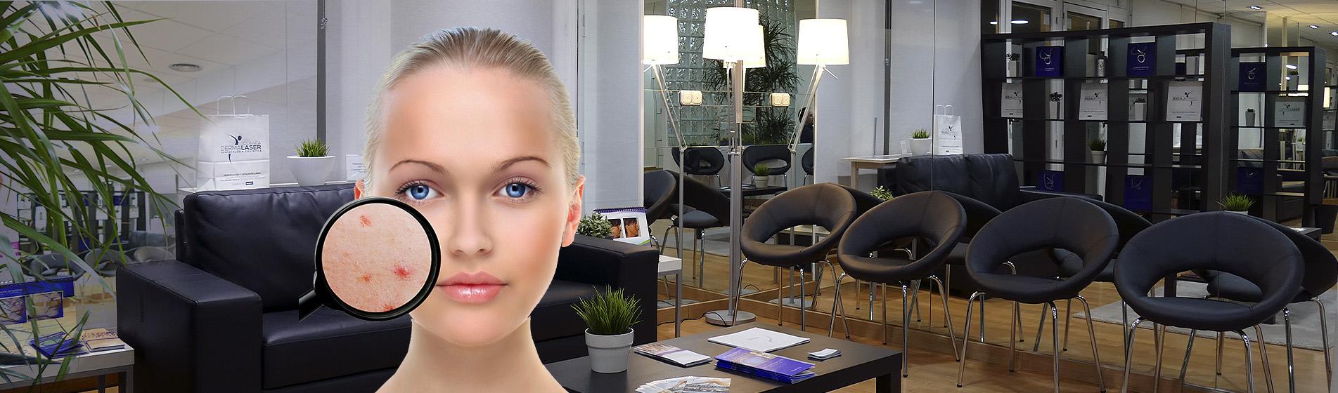 Clinica Dermalaser Dermatologia Estetica Depilacion Laser